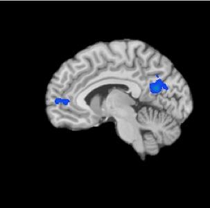 Опытные медитирующие словно выключают зоны мозга, связанные с блуждающими мыслями, тревогой и некоторыми психическими расстройствами, такими, как шизофрения. Исследователи использовали функциональное МРТ, чтобы определить, как мозг медитирующих отличался от испытуемых, которые не медитировали. Области, выделенные синим цветом, - это области сниженной активности в мозге медитирующих.